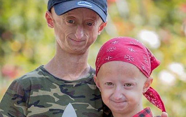 Affetti da Progeria