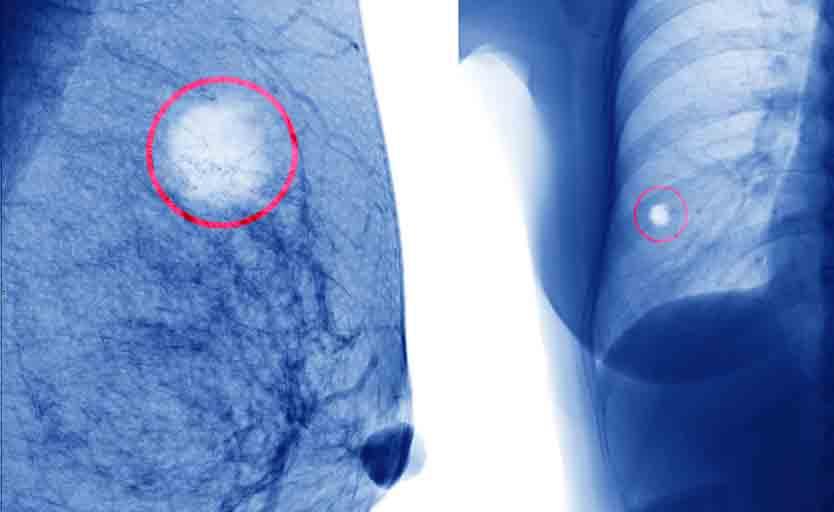 Cancro al Seno con Metastasi