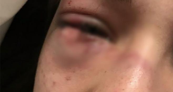 ferita ad un occhio cover