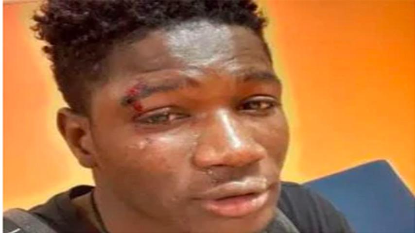 la vittima aggressione razzista a palermo