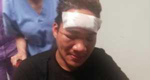 Demetrio Elida, il filippino picchiato sul bus