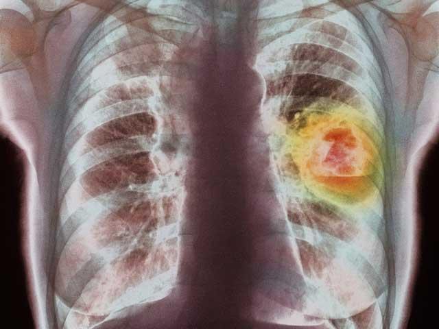 tumore-ai-polmoni-ragg